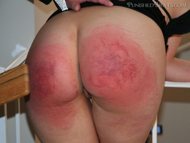 Sore spank bottoms