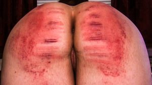 caning welts
